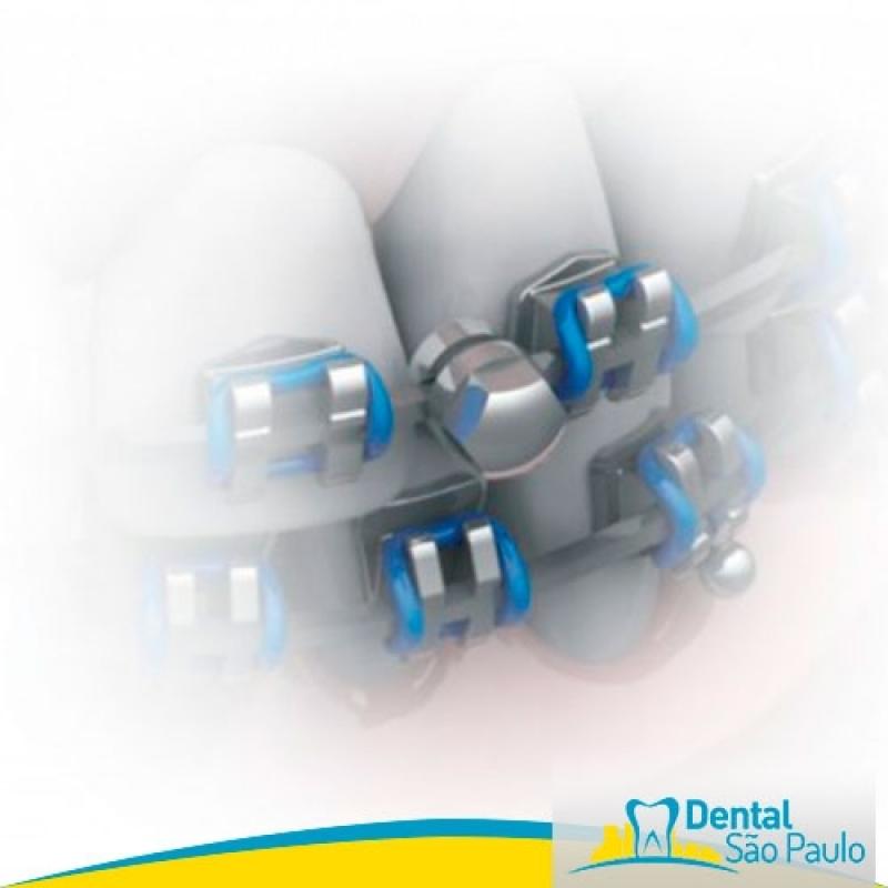 Dental de Ortodoncia Parque Dom Pedro - Dental Ortodontia com Produtos Aditek