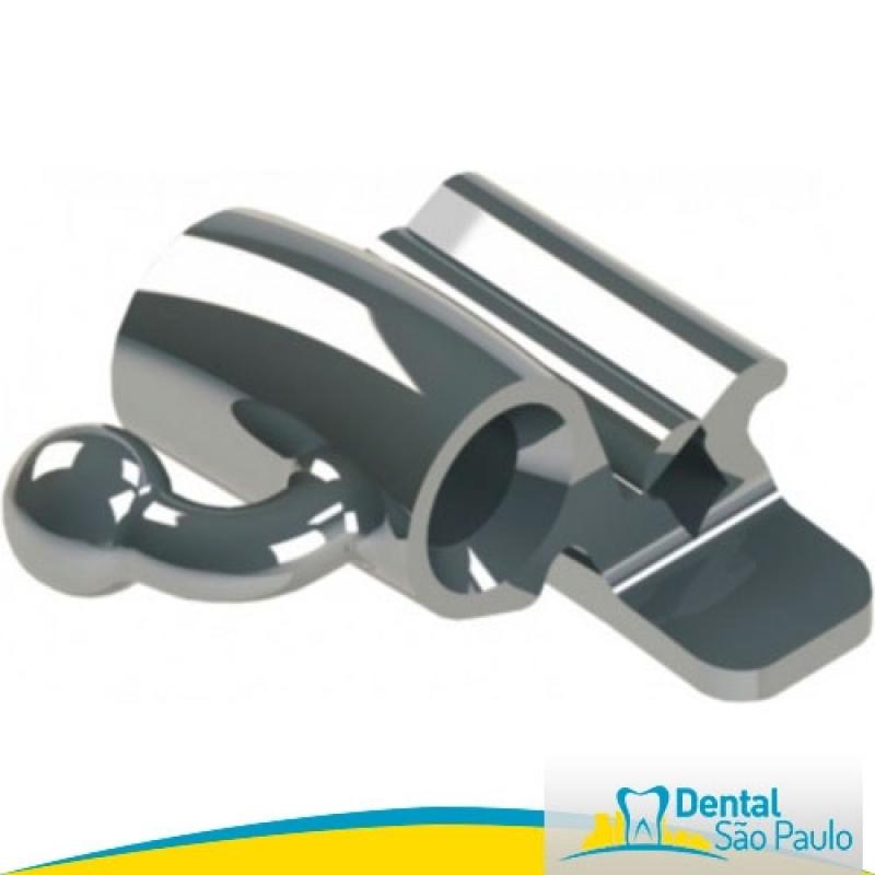 Dental Orto Preço Mandaqui - Dental Ortodontia com Produtos Aditek