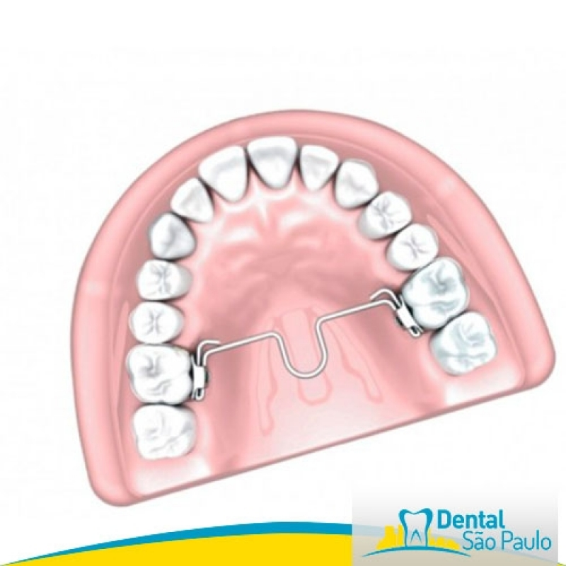Dental Ortodontia de Produtos Morelli Jundiaí - Dental Ortodontia Produtos Orthomertric
