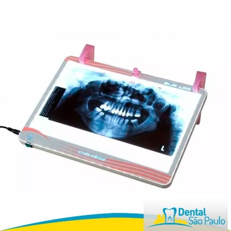 Negatoscopio Odontológico Slim Led de Parede Valor Cananéia - Negatoscopio Odontológico Slim Led Essence