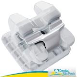 braquetes ortodonticos Franco da Rocha