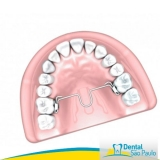 dental ortodoncia valor Alto do Pari