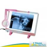 negatoscópio odontológico vh